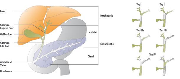 Biliary Tract Carcinoma Gall Bladder Carcinoma Cap71 Study